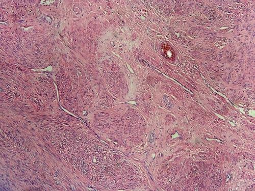 Mioma - Causas, Principais Sintomas e Sinais, Diagnóstico e Tratamentos